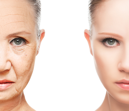 Facelift Before - After